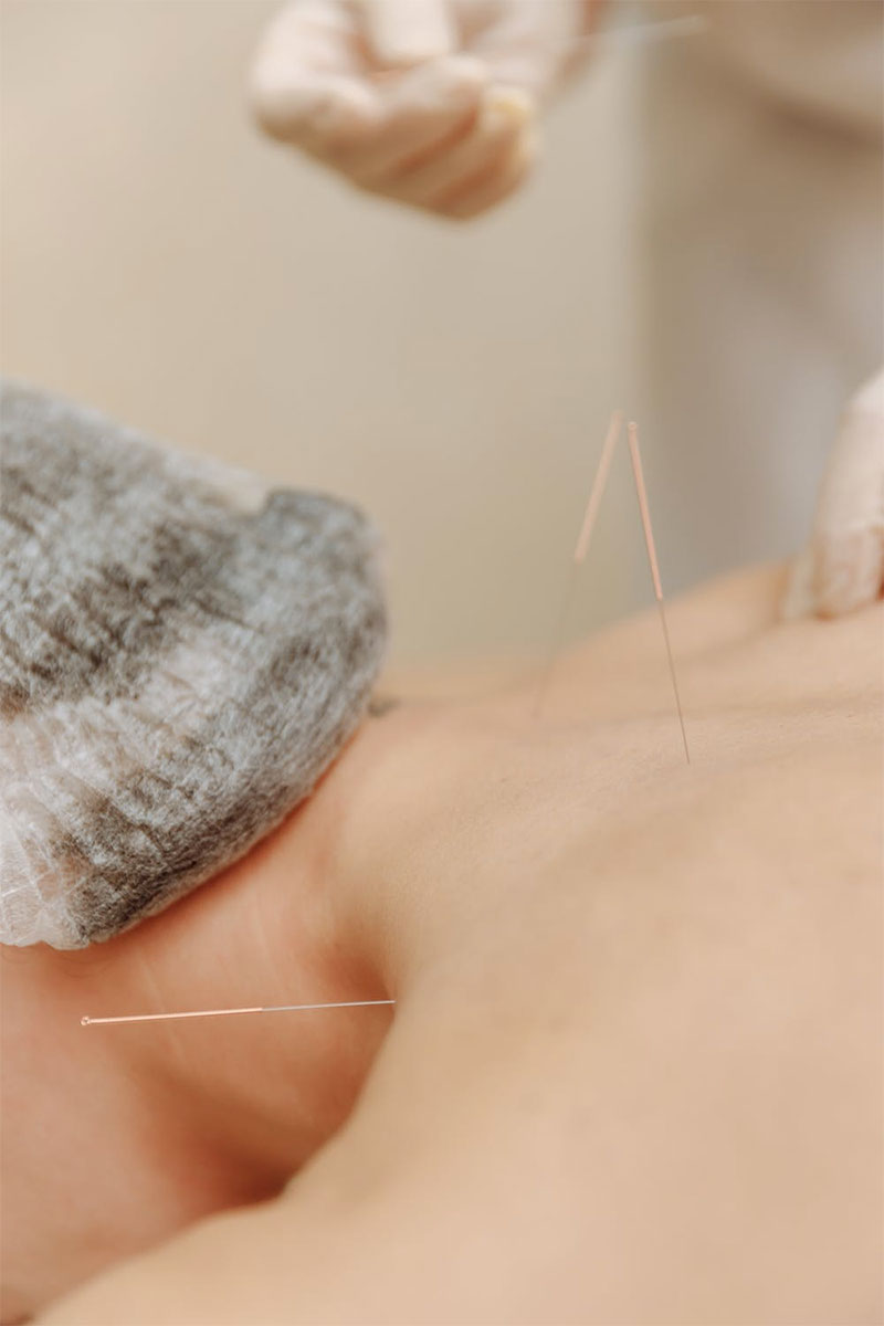 Free Sample of Acupuncture Needles